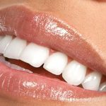 What's Your Dental IQ?